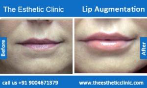 lip-augmentation-before-after-photos-mumbai-india-1