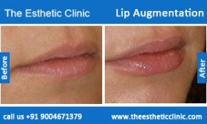 lip-augmentation-before-after-photos-mumbai-india-3