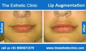 lip-augmentation-before-after-photos-mumbai-india-4