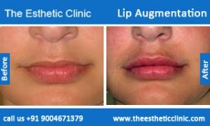 lip-augmentation-before-after-photos-mumbai-india-6
