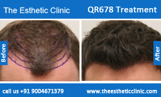 QR678-Treatment-4