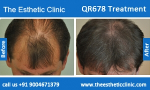 QR678-Treatment-3